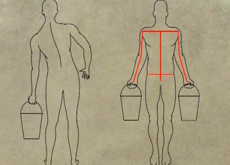 Изкривавене на гръбначния стълб