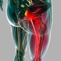 възпаление на седалищния нерв