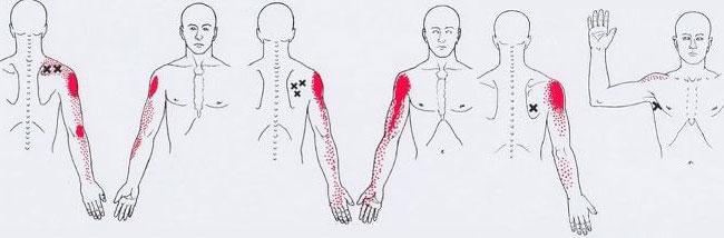 масаж на тригерни точки
