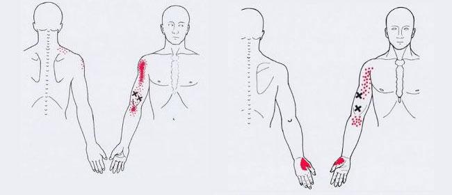схващане на мускулите