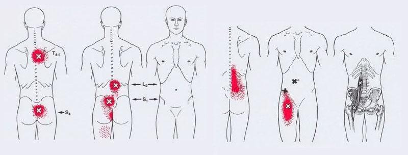 болки в корема