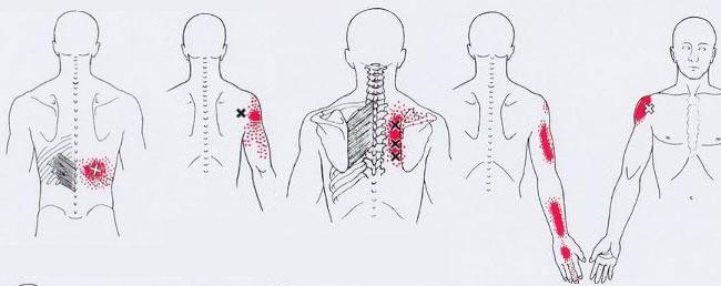 тригерни точки на гърба