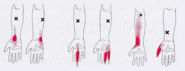 болка в пръстите