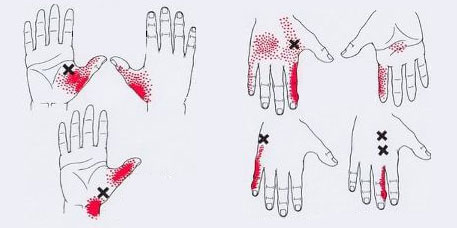тригерни точки на пръстите