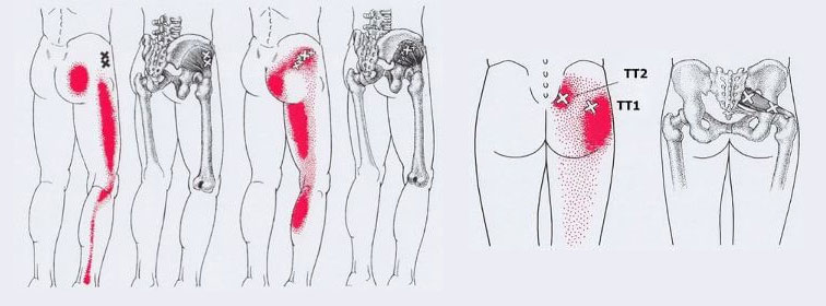 шригерни точки в тазобедрените мускули