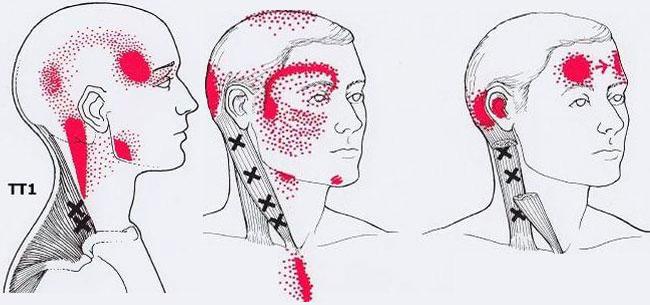тригерни точки на главата