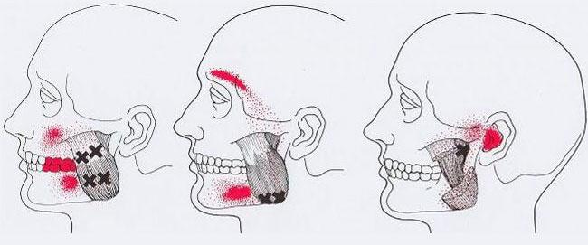 тригерни точки на лицето