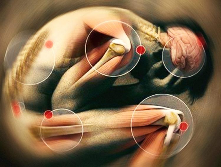масаж при миалгия