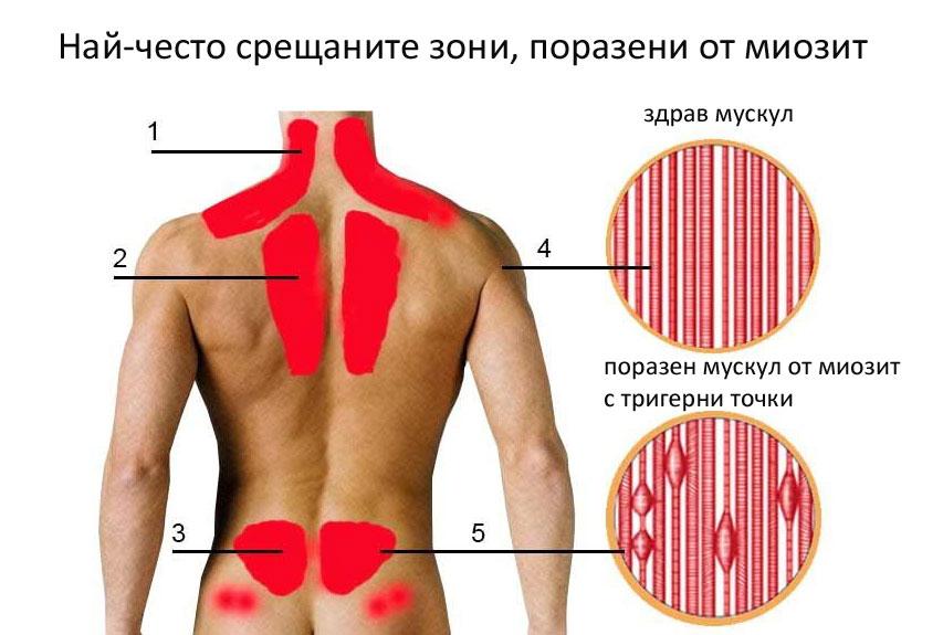масаж при миозит