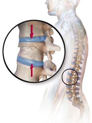 ппроблеми с гръбначен стълб