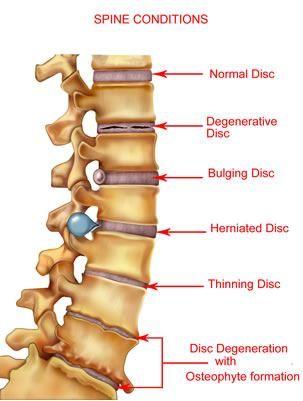проблеми с гръбначния стълб