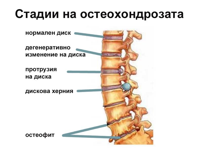 стадии на остеохондроза