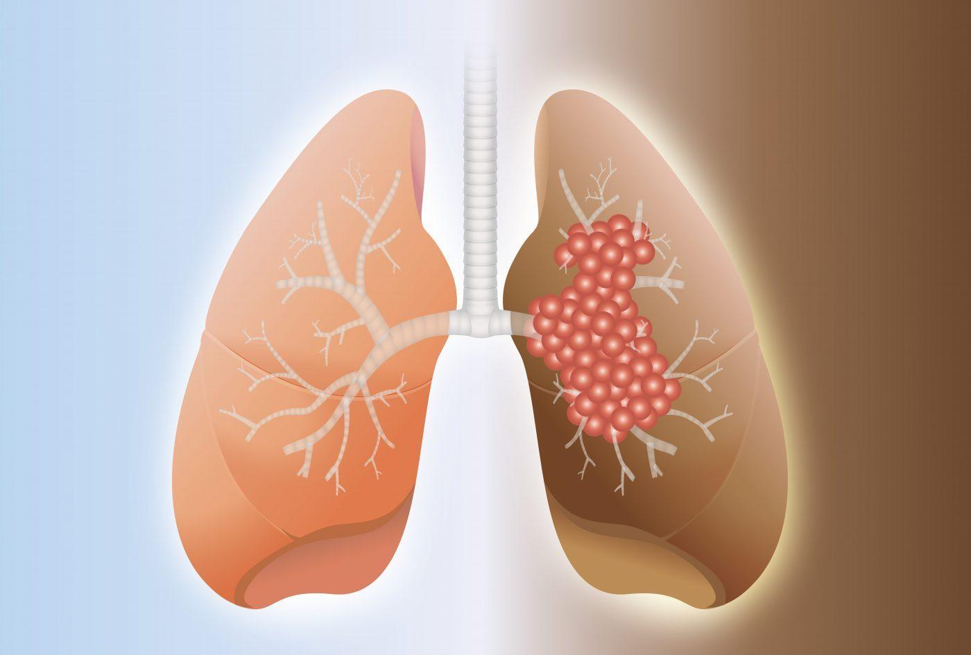 фиброза на белия дроб