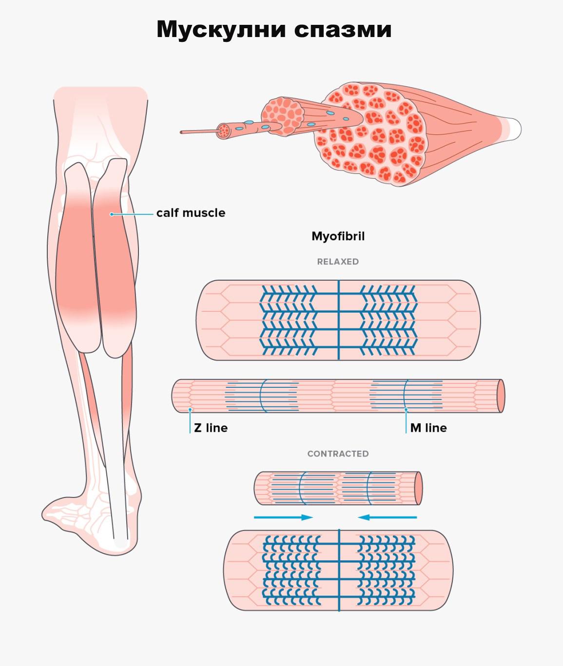спазъм на мускулите